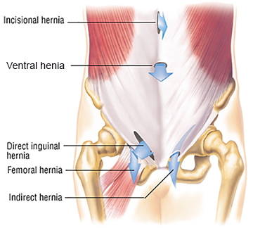 What is a Hernia? - Athens Hernia Clinic